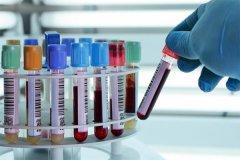 6周香港验血邮寄检测安全问题